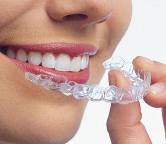 Şeffaf Plaklarla Ortodontik Tedavi